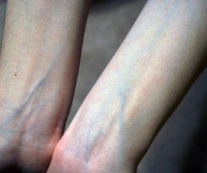 العروق الزرقاء تحت الجلد فى جسم الانسان سببها وكيفية علاجها ببعض النصائح