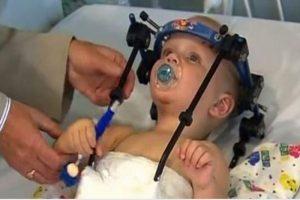 نجاح الاطباء بتثبيت رأس طفل مع عامودي الفقري بعد تعرضه لحادث كبير | شبكة عرب مصر