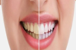 تبيض الاسنان بشكل سليم وصحي وللتخلص من الالام اتبع تلك النصائح الان