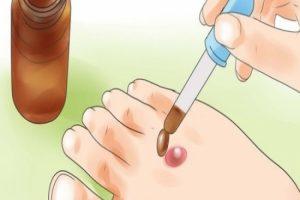 علاج البثور الدموية التي تظهر بالجسم من وقت لاخر بطرق طبيعية تعرف الان