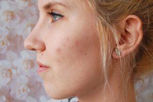 علاج حب الشباب في البشرة والتجنب من ظهورها مره اخري في بشرتك