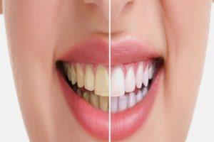 تبييض الاسنان بشكل سليم اتبع تلك النصائح لابتسامة رائعة تعرف الان